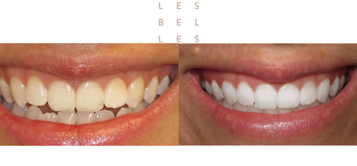 Teeth before and after Invisalign treatment at Les Belles, New York.